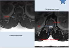 NORMAL MRI LUMBAR SPINE - cont