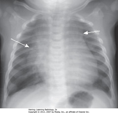 NORMAL THYMUS • May overlap upper portion of the cardiac silhouette • Can be mistaken for cardiomegaly in a child • SWA: thymus often lobulated in appearance • Usually involves by 3y, may be visible up to 8y