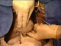 oblique pericardial sinus