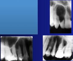 Odontogenic Fibroma