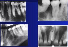 Odontogenic Myxoma