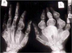 Olliers disease