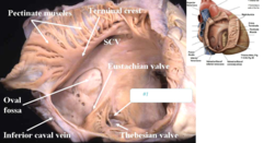 opening and valve of coronary sinus
