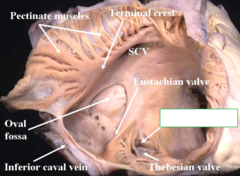 opening of the coronary sinus; it is anterior and adjacent to opening of the IVC