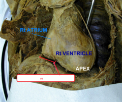 opening of the inferior vena cava