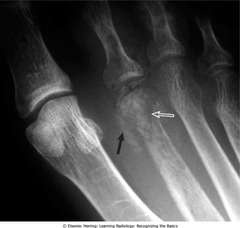 Osteomyelitis (of 2nd MT, infection and inflammation)