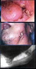 Osteoradionecrosis