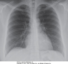 OVERPENETRATED • Lung markings difficult to see - mimics emphysema findings or PTX