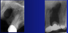 Periapical Fibrous Scar