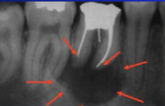 Periapical Granuloma/Cyst
