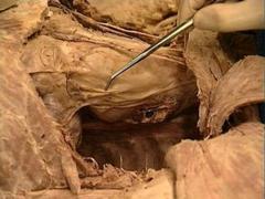 phrenic nerve, pericardiacophrenic artery and vein