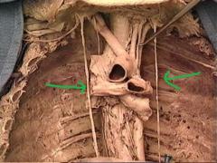 phrenic nerves  innervate diaphragm