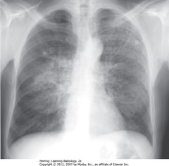 PNEUMOCYSTIS CARINII (JIROVECI) PNA (PCP) • Diffuse interstitial, primarily reticular, lung dz • No pleural effusions (would be in pulmonary interstitial edema • No evidence of sarcoidosis (no hilar adenopathy) • Pt has hx AIDS