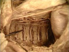 posterior intercostal vein, artery and nerve (VAN) mnemonic