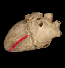 posterior interventricular sulcus  between left and right ventricles on diaphragmatic surface