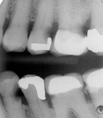 recurrent secondary caries