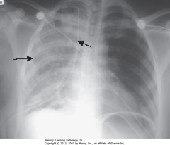 REEXPANSION PULMONARY EDEMA • SBA: unilateral airspace disease affecting entire R lung • DBA: chest tube for R-sided tension PTX • Caused by rapid reexpansion of lung that has typically been chronically by PTX or large pleural effusion