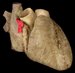 right auricle of the heart