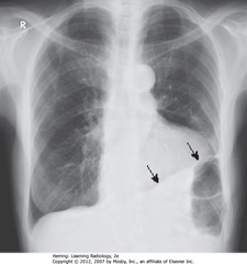 SCARRING PRODUCING BLUNTING OF L COSTOPHRENIC ANGLE • SBA: