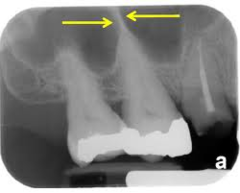 septum (septum in the maxillary sinus)