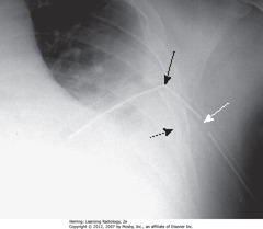 SIDE HOLE OF CHEST TUBE OUTSIDE THORAX • SWA: side holes outside thoracic wall • SBA: tube kinked as entering chest • Underlying pleural effusion • Air leak makes pleural effusion persist