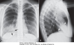 SILHOUETTE SIGN, RML PNA • Fluffy, indistinctly marginated airspace disease right of heart • Right heart border obscured (SBA) • Right Hd not obscured (DBA) • Silhouette sign: obscuring - means disease touching border, same radiographic density as heart • PNA fills airspaces w/inflammatory exudate of fluid density • Major fissure - below PNA (DWA) • Minor fissure - above PNA