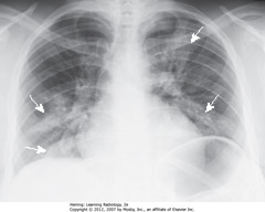 STAPHYLOCOCCAL BRONCHOPNEUMONIA • Irr. marginated patches airspace disease, both lungs - typical bronchopneumonia distribution/appearance (SWA) • Spreads from tracheobronchial tree to multiple foci in lung (often involves several segments) • Lung segments not bound by fissures - so margins of segmental PNAs are fluffy, indistinct • No air bronchograms - inflammatory exudate fills bronchi and surrounding airspaces