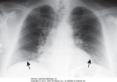 SUB-OPTIMAL INSPIRATION • 8 posterior ribs visible • Black arrows: crowded - accentuates lung markings at bases • Crowded lung markings mimic aspiration or PNA • Get lateral CXR to determine if basilar airspace disease actually present
