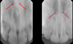 superior foramina of nasopalatine (on each side of nasal septum)