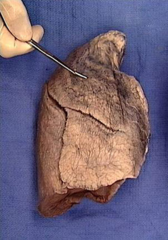 superior lobe of right lung