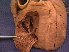 trabeculae carnae of right ventricle