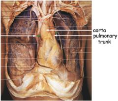 transverse pericardial sinus