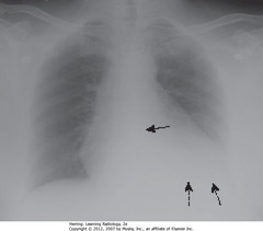 UNDERPENETRATED  • SBA: spine not visible through cardiac shadow • DBA: left Hd not visible • Get lateral CXR to differentiate between artifact of technique & disease