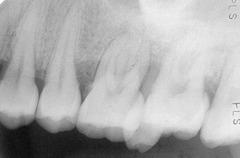 vertical angulation problem