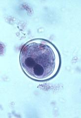 Balantidium coli cyst