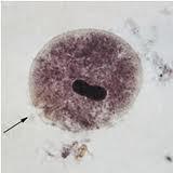 Balantidium coli troph
