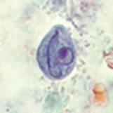 Chilomastix Mesnili cyst