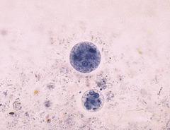 Entamoeba histolytica cyst