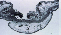entamoeba histolytica (flask shaped ulcer)