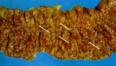 entamoeba histolytica (intestinal ulcer)