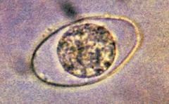 isospora belli (oocyst)