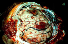 naegleria fowleri (meningoencephalitis)
