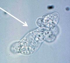 naegleria fowleri (trophs in sterile fluid)