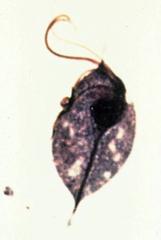 trichomonas vaginalis (troph)